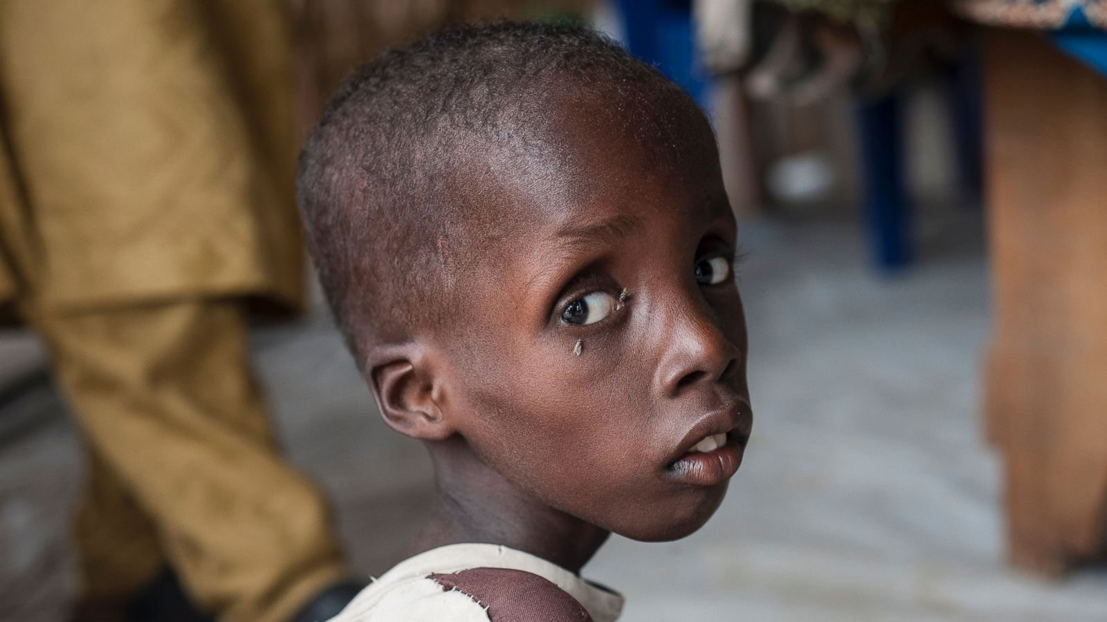 How To Easily Fight Malnutrition?